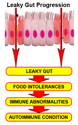 Most Comprehensive Natural Health Guide On The Market- Leaky Gut Cure