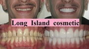 Gain a Beautiful Smile with Cosmetic Dentistry Long Island