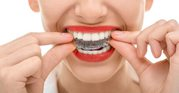 Align your teeth and restore dental functionality with quality braces